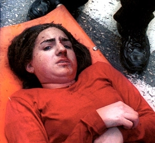 An injured Israeli teen waits to be evacuated after a Palestinian suicide bombing in Jerusalem in January 2002. (Brian Hendler)