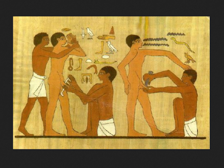 Oldest Circumcision in the World