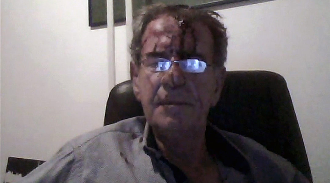 Dutch-Jewish Tob Cohen after a fight with his wife in 2019 near Nairobi, Kenya. (Courtesy of the family)