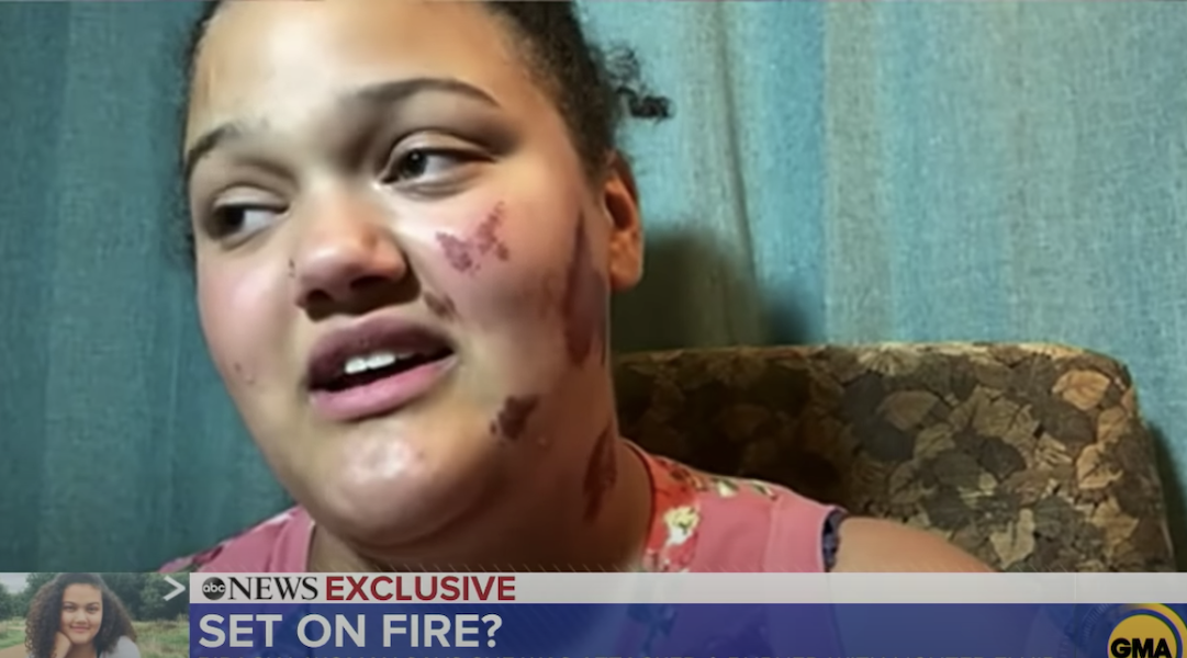 Family of biracial Jewish woman set on fire in Wisconsin thanks public for 'overwhelming outpouring...